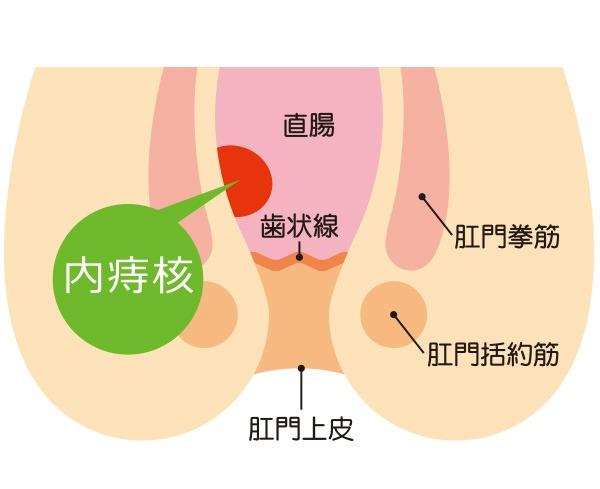 いぼ痔「内痔核」の主な症状