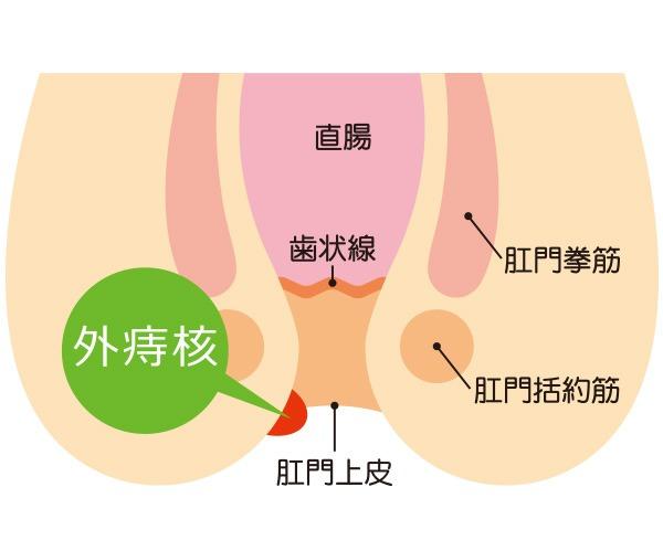 いぼ痔「外痔核」の主な症状